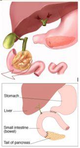 Pankreas Kanseri En Acımasız Kanserdir! Bitkisel Tedavisi